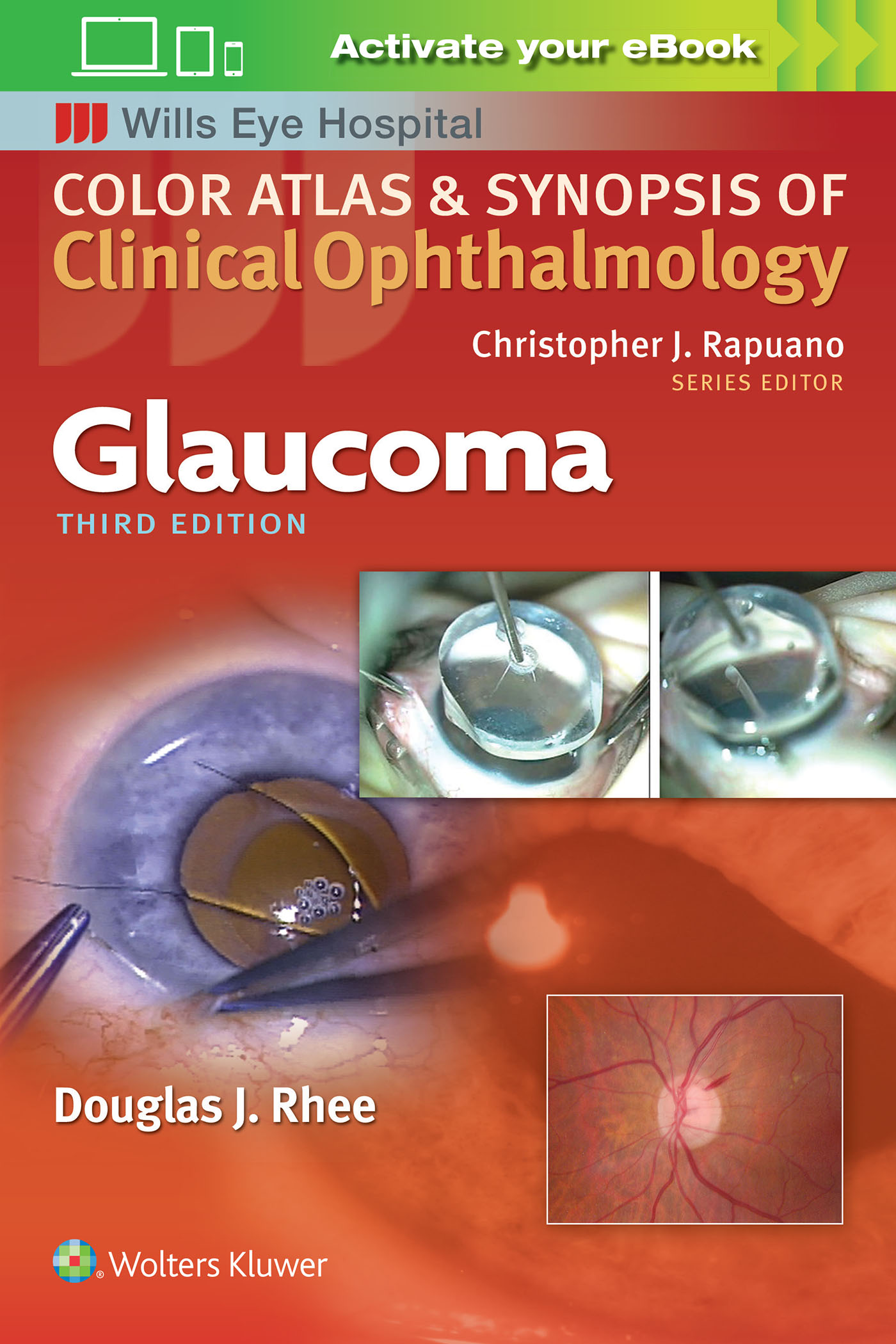 Color Atlas and Synopsis of Clinical Ophthalmology - Glaucoma