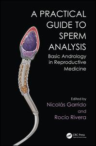 Practical Guide to Sperm Analysis