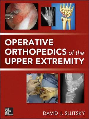 Operative Orthopedics Of The Upper Extremity