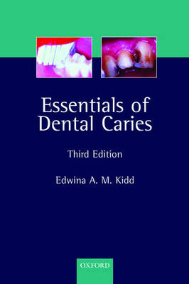 Essentials of Dental Caries: The Disease and Its Management