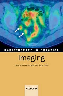 Radiotherapy in Practice - Imaging