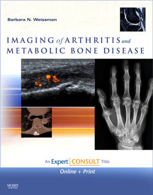 Imaging of Arthritis and Metabolic Bone Disease