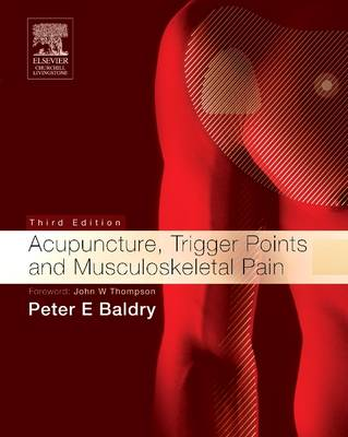 Acupuncture Trigger Points and Musculoskeletal Pain