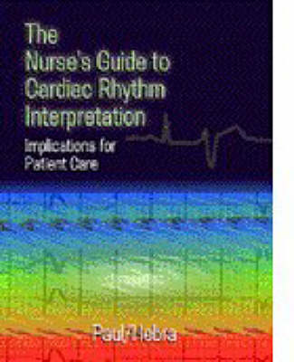 Nurses Guide To Cardiac Rhythym Interpretation