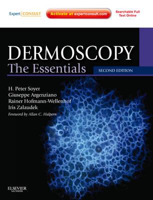 Dermoscopy: The Essentials