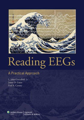 Reading EEGs: A Practical Approach