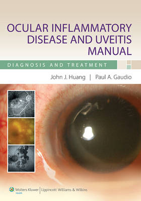 Ocular Inflammatory Disease and Uveitis Manual: Diagnosis and Treatment