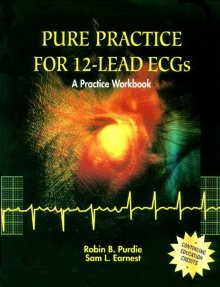 Pure Practice in 12-Lead Ecgs Work