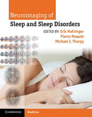 Neuroimaging Sleep and Sleep Disord