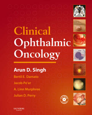 Clinical Ophthalmic Oncology with CD-ROM