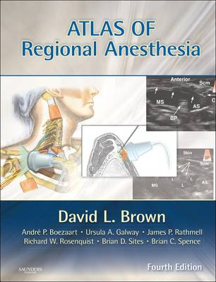 Atlas of Regional Anesthesia