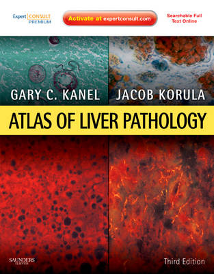 Atlas of Liver Pathology