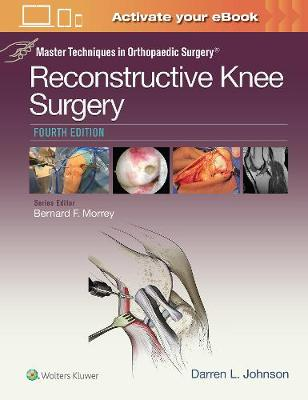 Master Techniques in Orthopaedic Surgery: Reconstructive Knee Surgery (Master Techniques in Orthopaedic Surgery)