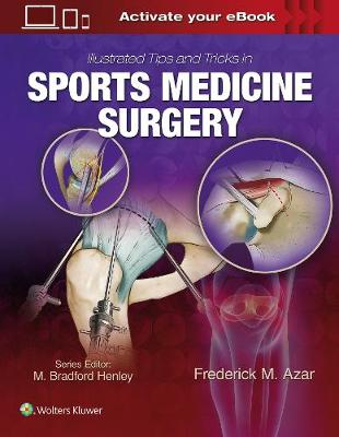 Illustrated Tips and Tricks in Sports Medicine Surgery, North American Edition