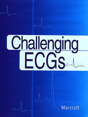 Challenging ECGs