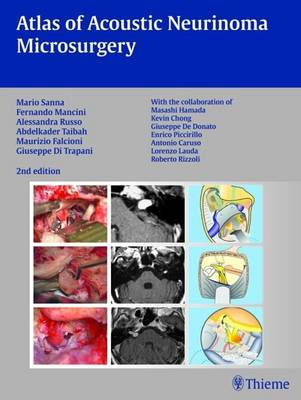 Atlas of Acoustic Neurinoma Microsurgery: Zus.-Arb.: Mario Sanna Essam Saleh, Benedict Panizza, Alexandra Russo, Abdel Taibahwith the Collaboration of Refik Caylan, Fernando Mancini ...