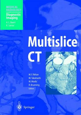 Multislice CT