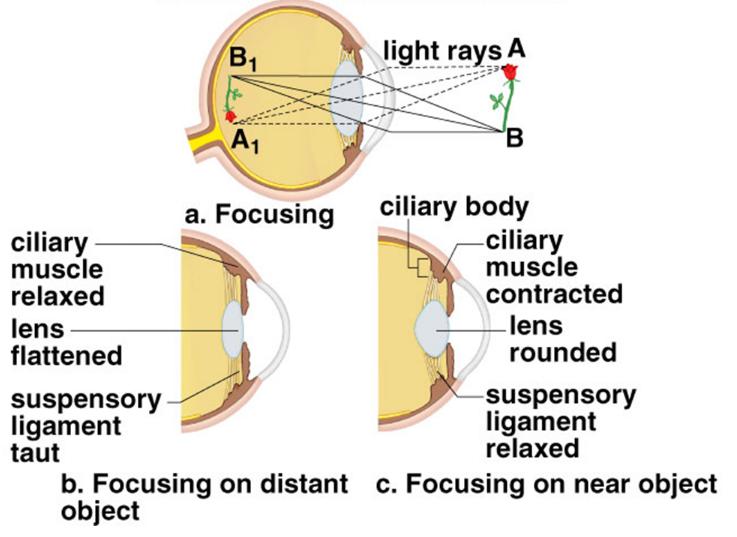 presbyopia specialists brisbane