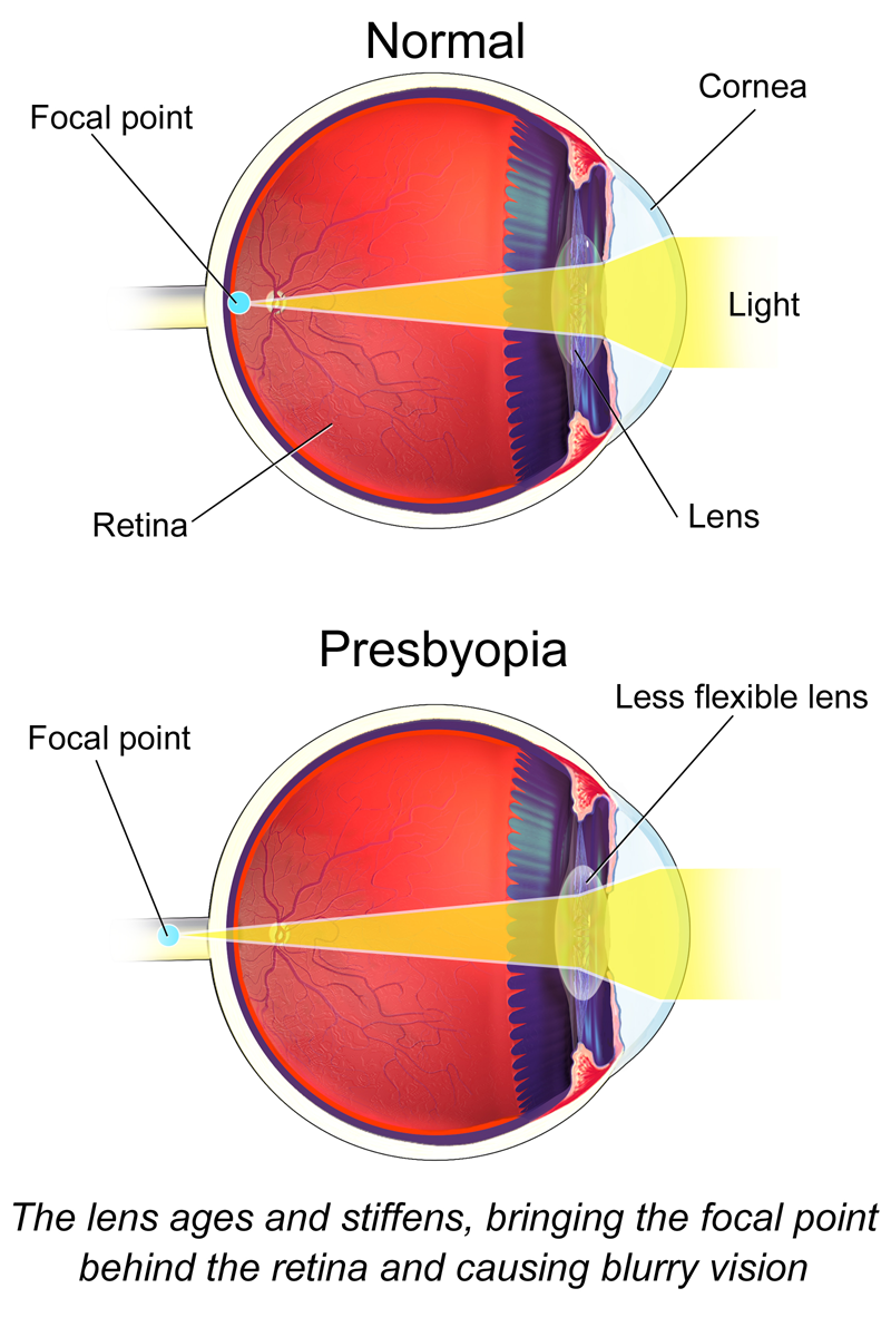 brisbane presbyopia treatment