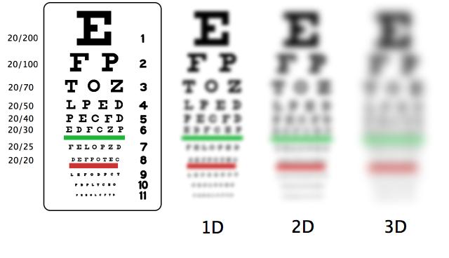Myopia Vision comparison brisbane