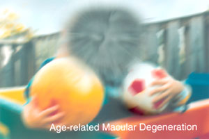 Macular degeneration untreated