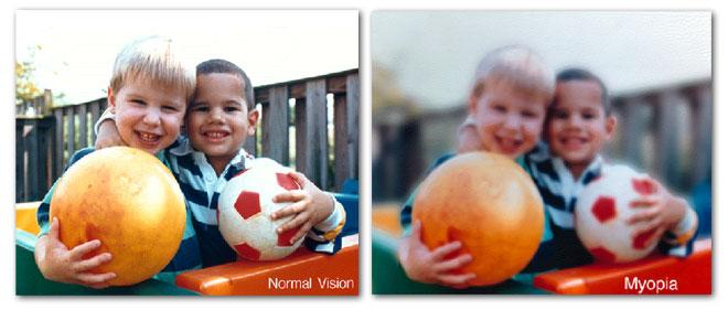 Myopia Control Brisbane orthokeratolgy