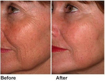 Rf before after side face