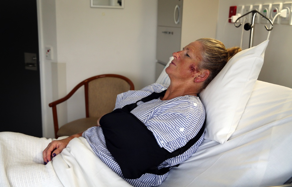 Grandmother and cyclist Kym Carr nurses her injuries in hospital. Picture: Martin Kennealey d452693p