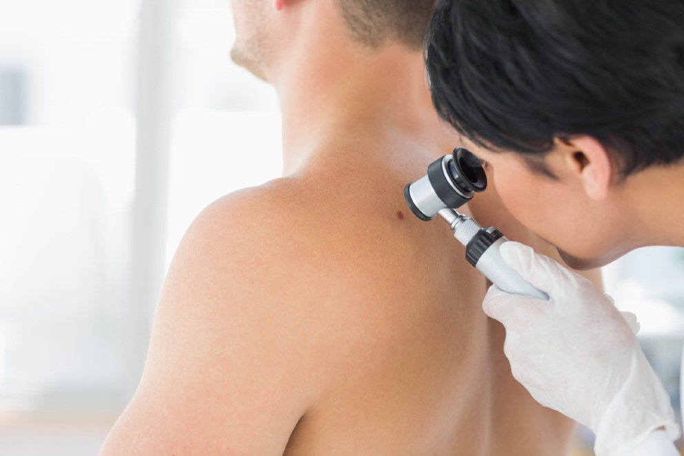 Lions Club and Lions Cancer Institute offering free skin checks