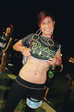 Dajana Tesevic (24) shows off her scar from liver transplant surgery five months ago at the Neon Run.