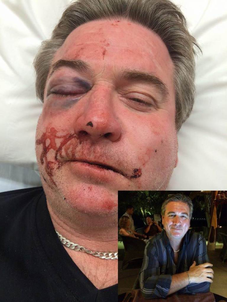 Glenn Palmer before and after the August 2014 attack.