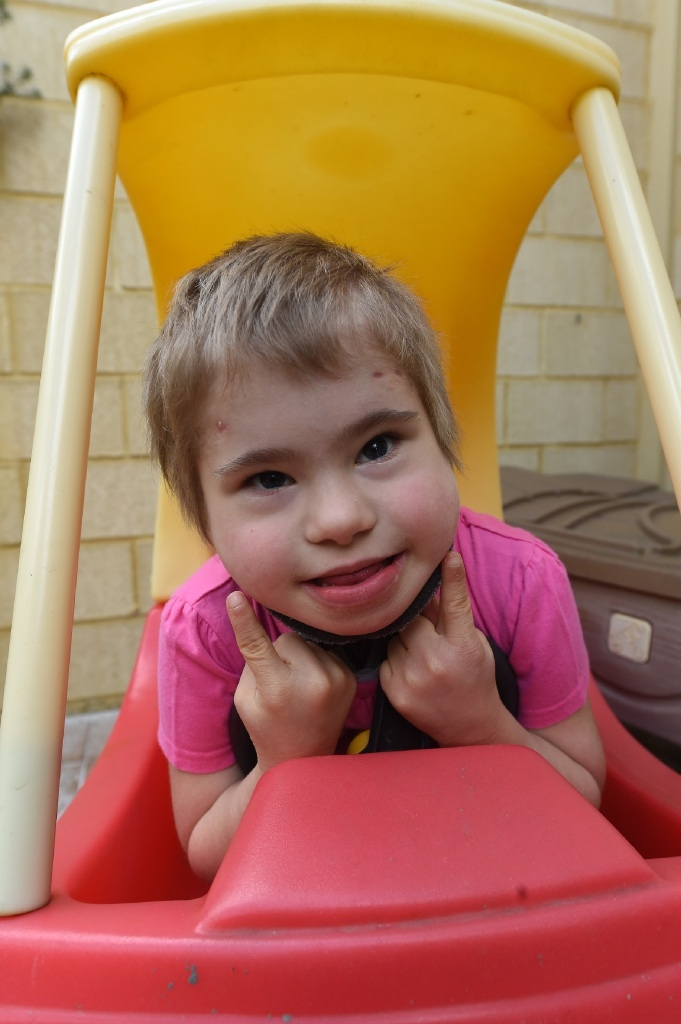 Beth Elbert (6) has had countless surgeries.Picture: Jon Hewson           d444389