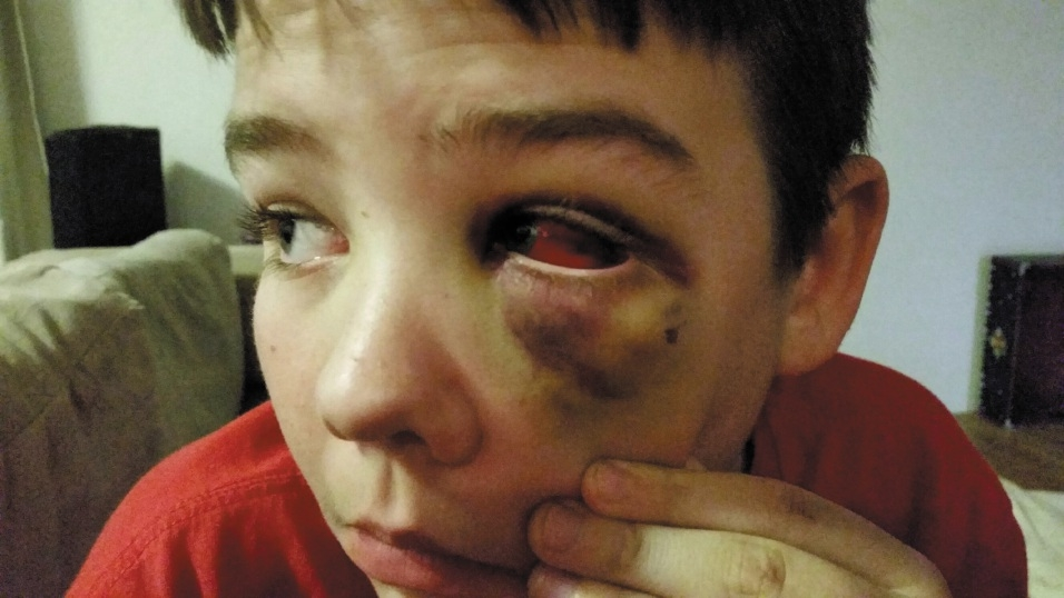 Lachlan Dimmack (13) was hurt in a fight at school.