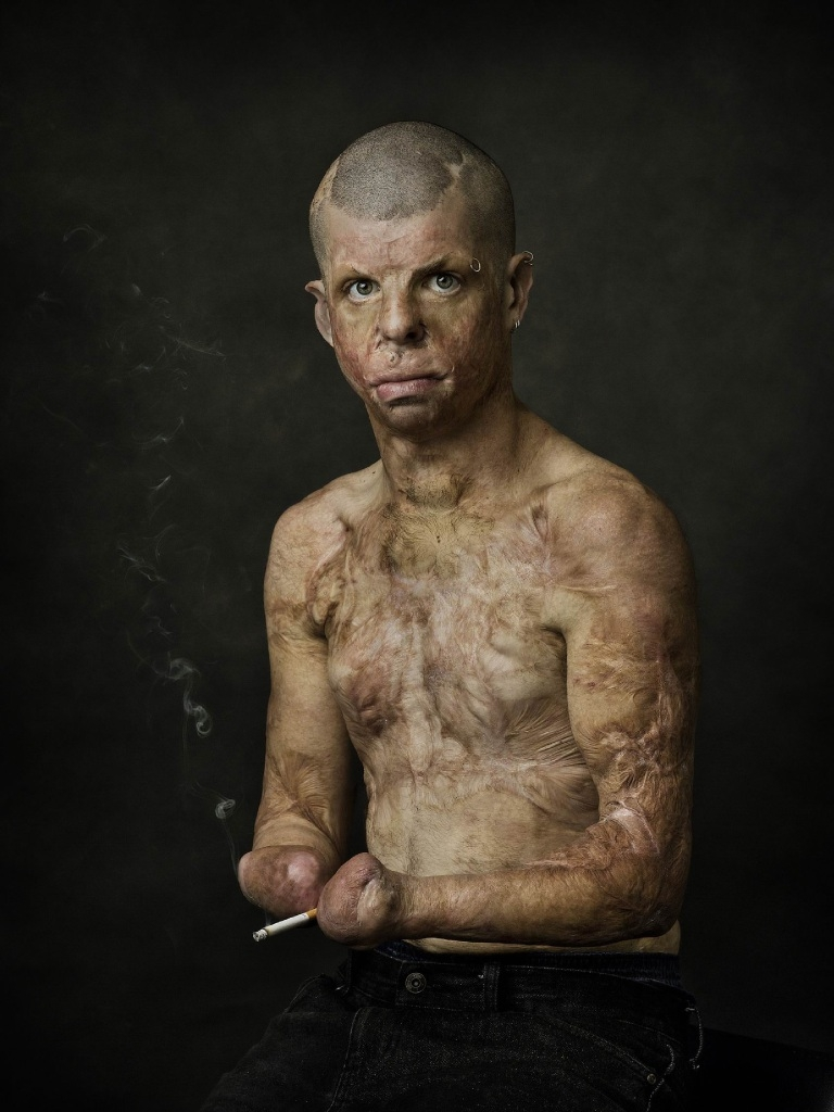 'Robbie', the subject of Steve Wise's portrait, suffered burns to 95 per cent of his body when he was four.