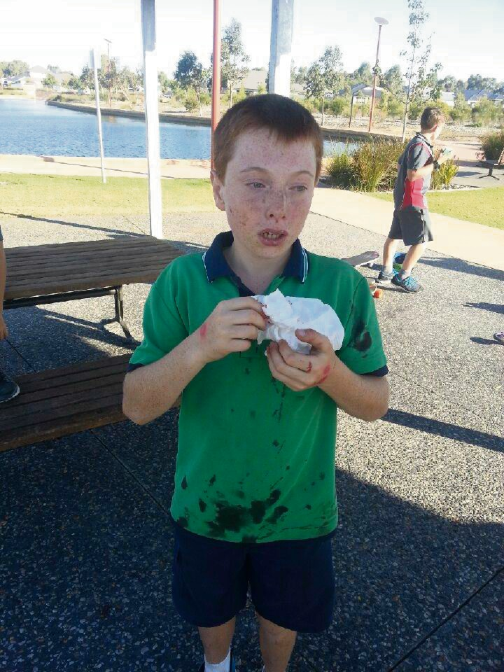 Lyncon Owen after he was beaten up at a Baldivis park.