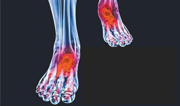 Talk: Feet and Arthritis
