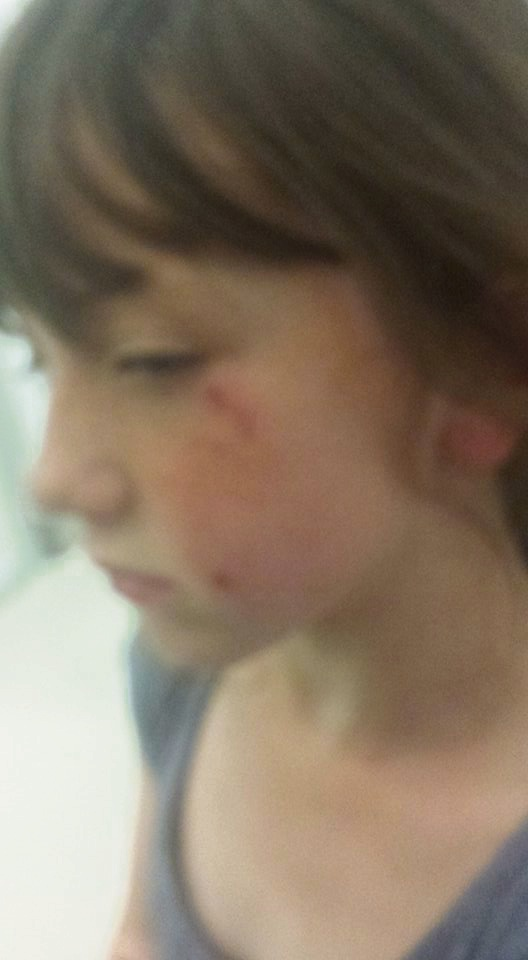 Waikiki 10-year-old Paige Hankey was bitten in the face by a dog.