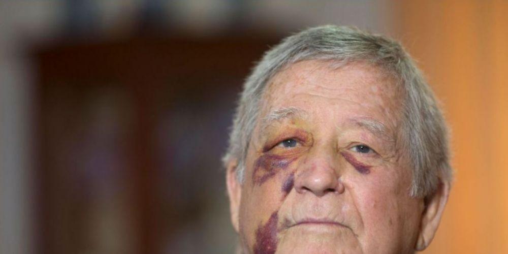 The bashing victim. Picture: Simon Santi / The West Australian