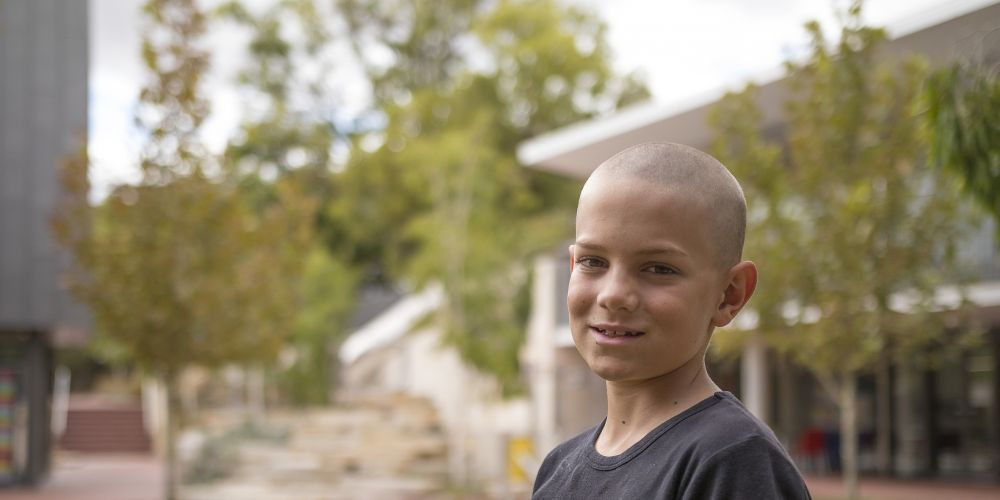 Cameron Carson is one of more than 30 boys at Guildford Grammar who is bald after taking part in the World's Greatest Shave.