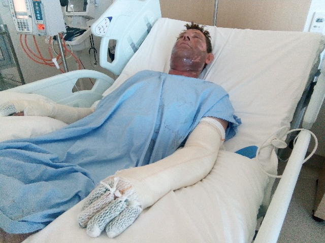 Stuart Graham is recovering in Fiona Stanley Hospital.