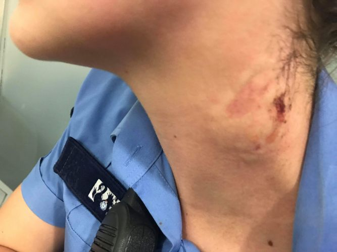"Union: ""full force of the law"" must come down on woman who allegedly bit a Mandurah police officer"