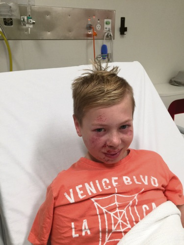 Zack Wren (12) is lucky to be alive after a bike crash.