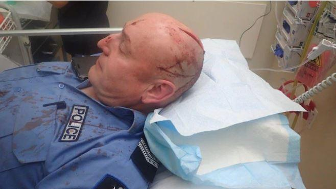 Andrew Swift in hospital after the incident. Photo: WA Police