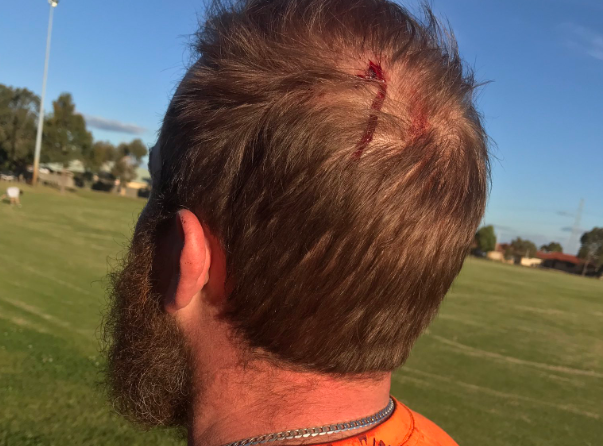A volunteer was attacked. Picture: Twitter