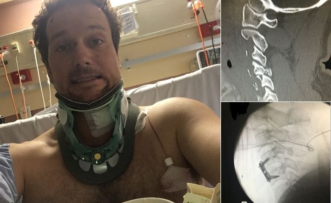 A brutal assault in Northbridge left a man with a broken neck and in need of spinal surgery. Pictures: Supplied