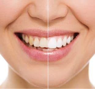 Cosmetic / Whitening