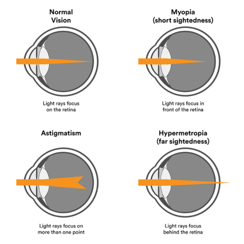 vision problems diagram