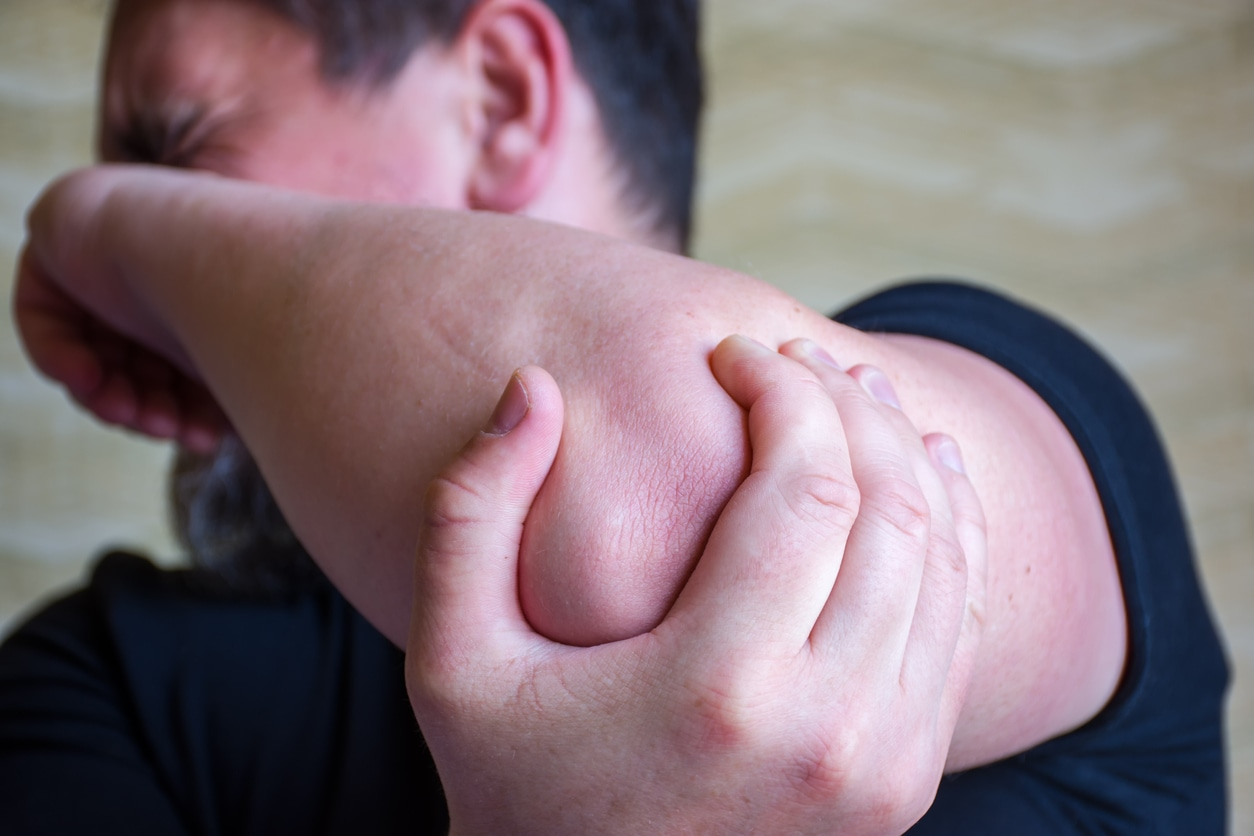 Scene with demonstration of strong pain in elbow and grimace of pain with focus on foreground on elbow. Cubital tunnel syndrome or ulnar nerve entrapment, diseases of elbow,  bruise or fracture
