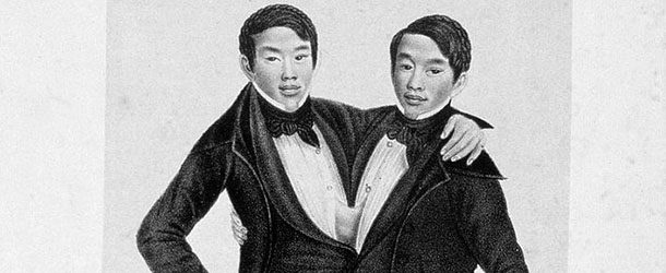 Birth of 'Siamese Twins' Chang and Eng Bunker