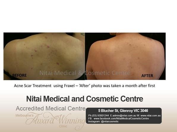 Buy Dermaceutic Laboratoire Products Online   Dermaceutic Stockists Australia - Nitai Medical & Cosmetic Centre